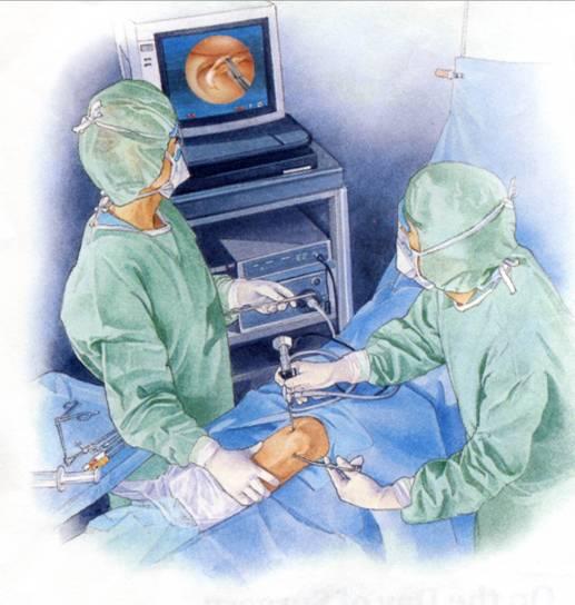 davide-cauti-chirurgia-ginocchio
